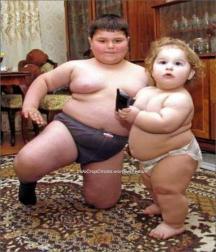 obesity obesitas child