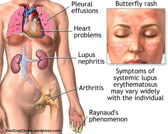 efek penyakit Lupus