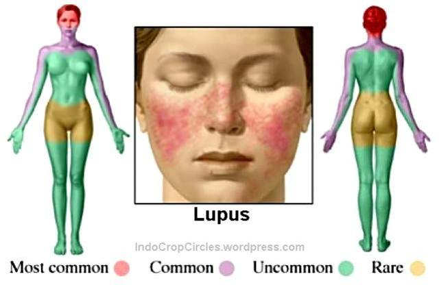 penyakit Lupus - kulit