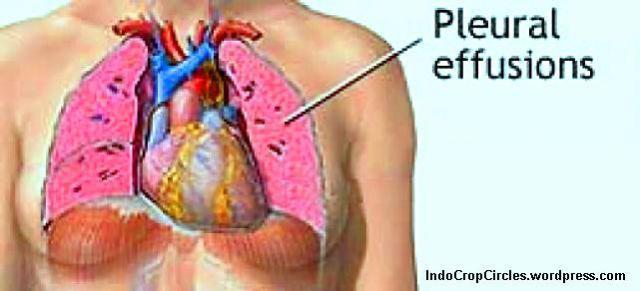 penyakit Lupus - paru