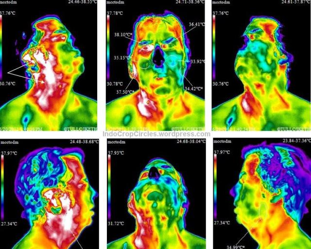 ponsel hape cancer kanker 06