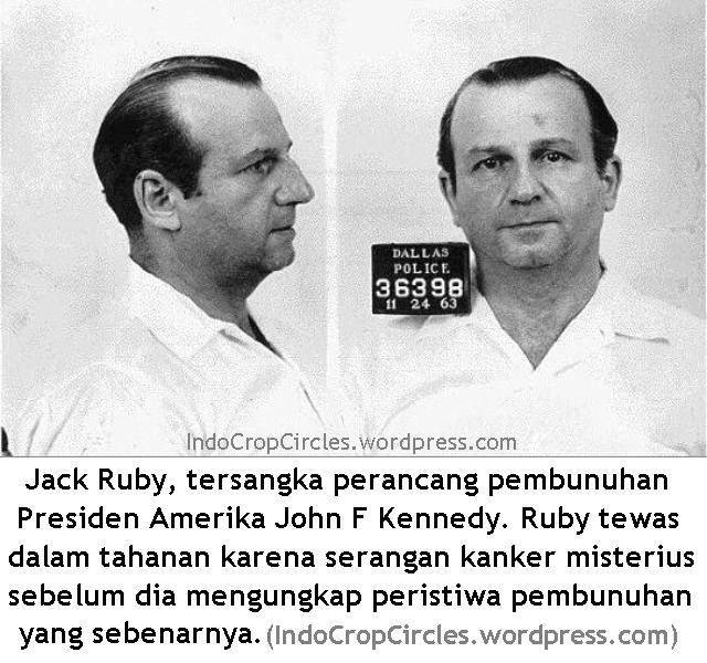 jack ruby tersangka pembunuh John F Kennedy