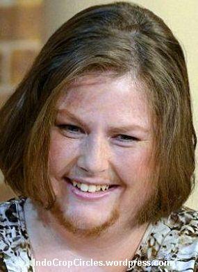 Bearded-Lady-Mariam-wanita berjenggot 02