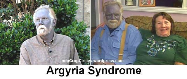 Argyria Syndrome