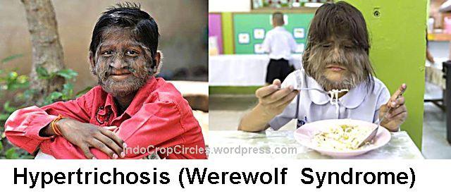 Hypertrichosis (Werewolf  Syndrome)