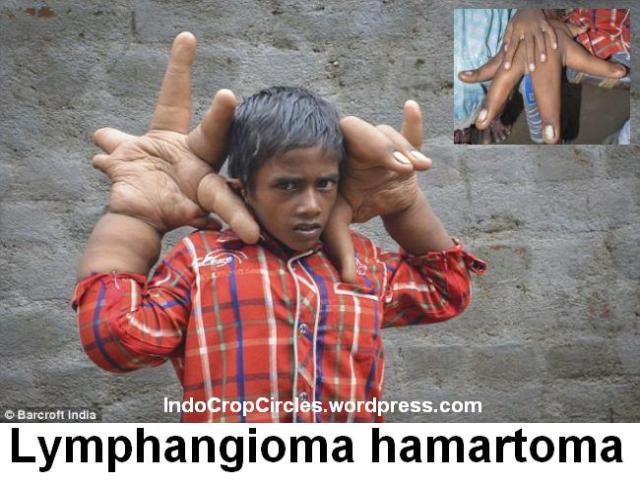 Lymphangioma hamartoma