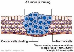 Sel normal berubah atau bermutasi menjadi sel tumor (warna biru) yang dapat menjadi sel kanker