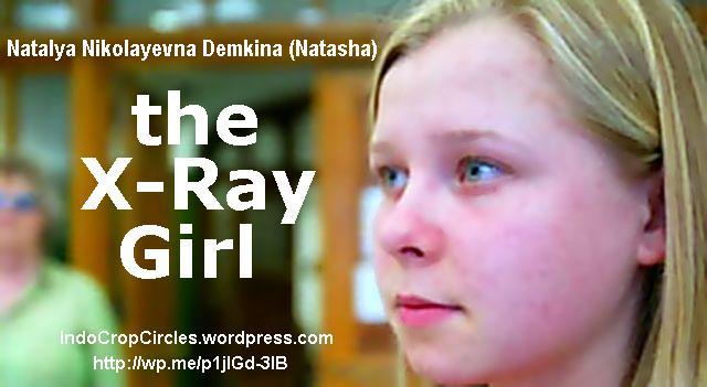 Natasha Demkina x-ray girl banner 02