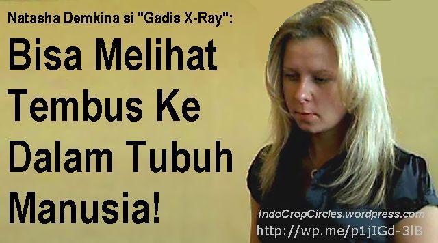 Natasha Demkina x-ray girl banner