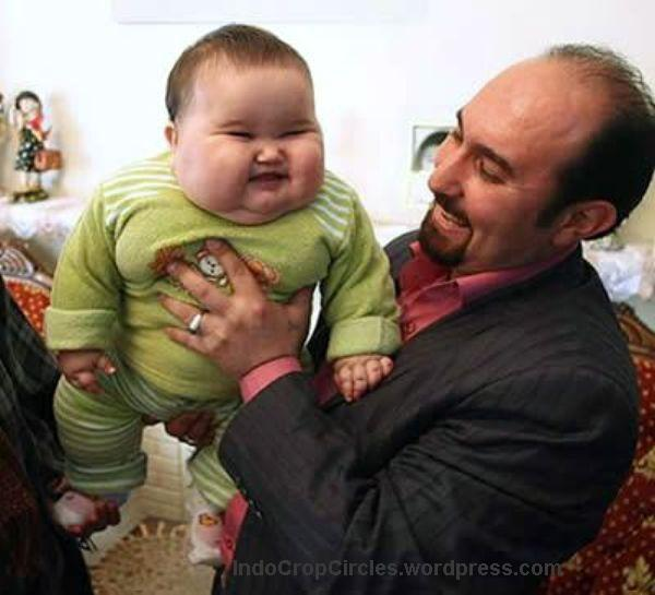 7.Bayi cacat-World's-Largest-Baby