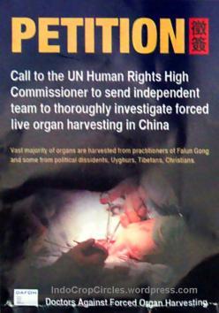 Transplantasi Organ di Cina 06