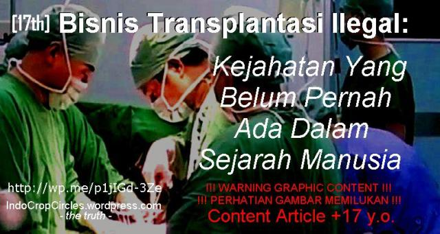 Transplantasi Organ di Cina header