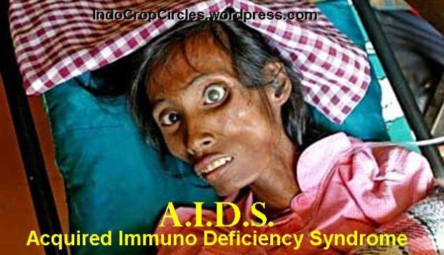 aids-hiv-2