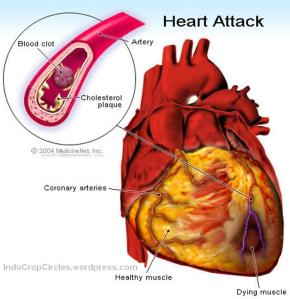 How-we-prevent-from-Heart-attack-Diseases