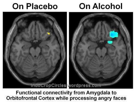 otak brains placebo