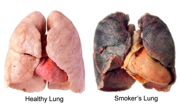 http://indocropcircles.files.wordpress.com/2014/06/10a36-lung.jpg?w=623&h=361