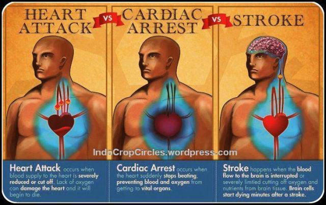 heart-attack-vs-cardiac-arrest-vs-stroke