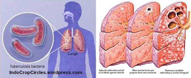 tubercolusis TBC