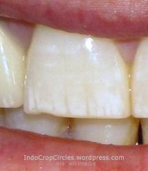 Mild dental Fluorosis gigi keropos