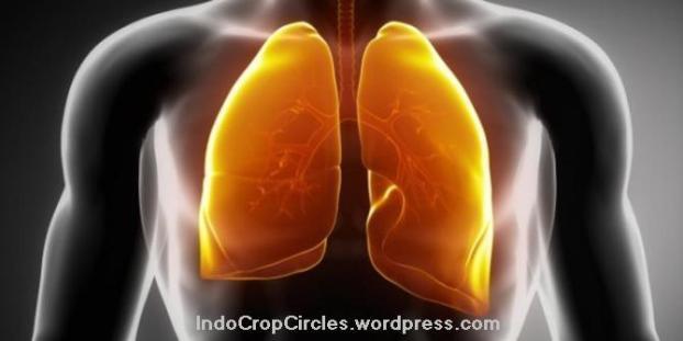 kanker-paru-paru