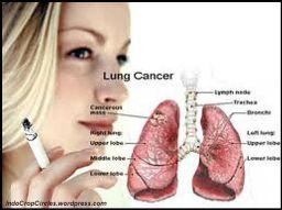 rokok cigaret kanker paru