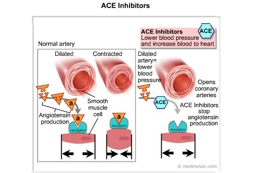 https://indocropcircles.files.wordpress.com/2015/12/7af16-aceinhibitors-bmp.jpg?w=615&h=413