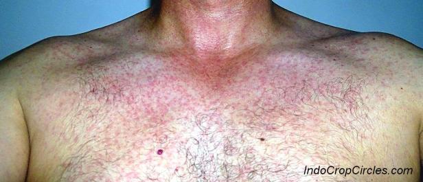 Ruam pada kulit orang dewasa ketika terkena virus Zika.