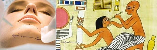 Bedah plastik atau cometic-surgery pada masa kini (kiri) dan pada masa Mesir kuno (kanan)