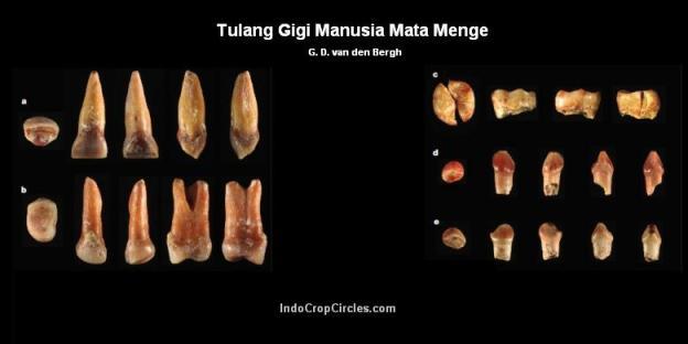 tulang-gigi-manusia-mata-menge2