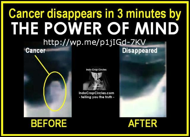 cancer-disappears-in-3-minutes-by-the-power-of-mind-banner