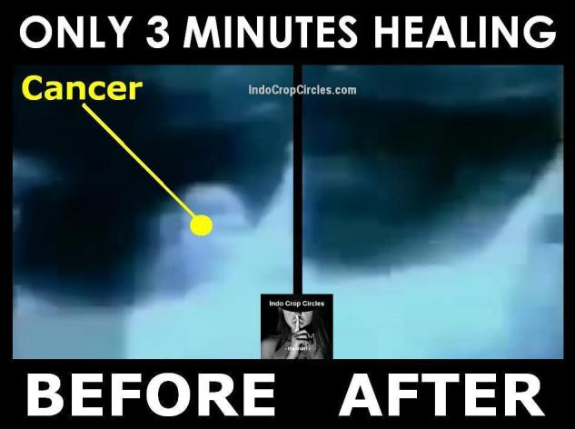 cancer-tumor-disappears-only-3-minutes